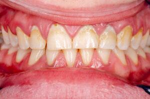 placca dentale