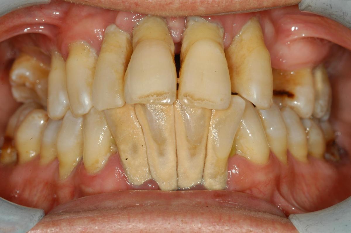 Paziente affetto da una forma severa di parodontite
