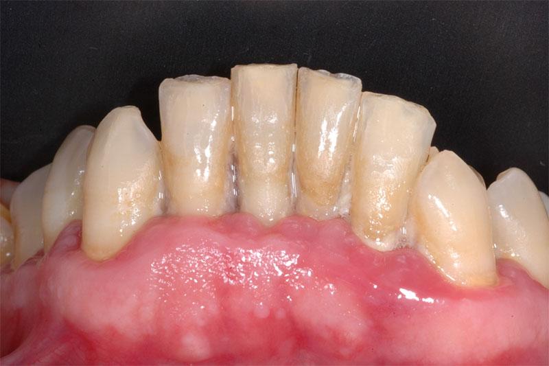 Gengive - Alitosi e parodontite